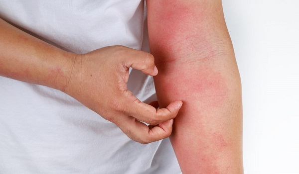 What is Anaphylaxis and Treatment, Symptoms of Anaphylaxis, Spread